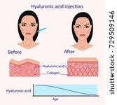 hyaluronic acid injection ... | Shutterstock .eps vector #729509146