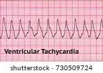ventricular tachycardia  vt  is ... | Shutterstock . vector #730509724