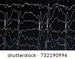 eeg electroencephalogramp... | Shutterstock . vector #732190996