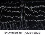 eeg electroencephalogramp... | Shutterstock . vector #732191029