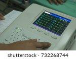 woman holding electrocardiogram ...   Shutterstock . vector #732268744