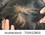 thin hair in women | Shutterstock . vector #733412803