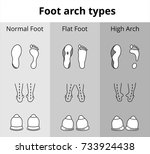foot arch types vector icons.... | Shutterstock .eps vector #733924438