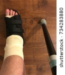 Small photo of Post operative bandaged foot in protective sandal next to crutch taking a step recovering from ankle surgery