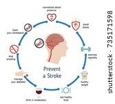 infographics for stroke.... | Shutterstock .eps vector #735171598