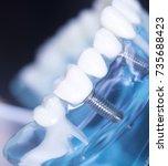 dentsts dental prosthetic teeth ...   Shutterstock . vector #735688423