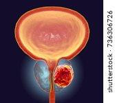 prostate cancer  3d... | Shutterstock . vector #736306726