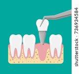 tooth restoration. installation ... | Shutterstock .eps vector #736934584