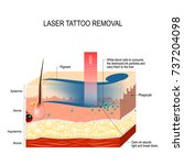 laser tattoo removal. how does... | Shutterstock .eps vector #737204098