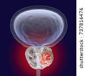 prostate cancer  3d... | Shutterstock . vector #737816476