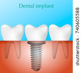 human teeth and dental implant... | Shutterstock .eps vector #740605588