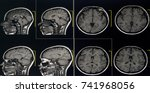 brain image with mri | Shutterstock . vector #741968056