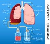 symptom spontaneous iatrogenic... | Shutterstock .eps vector #742265290