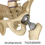 hip replacement implant...   Shutterstock . vector #742330690