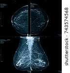 mammogram   mammography xray... | Shutterstock . vector #743574568