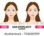 ear otoplasty surgery before...   Shutterstock .eps vector #743630599
