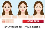 acne skin of woman to clear... | Shutterstock .eps vector #743658856
