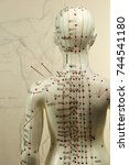 Small photo of female acupuncture model with needles in the shoulder