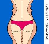 liposuction. hips  thighs ...   Shutterstock .eps vector #744737020