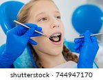 nice young girl wearing braces | Shutterstock . vector #744947170