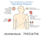 main complications of... | Shutterstock .eps vector #745216756