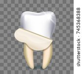tooth veneer whitening dental...   Shutterstock .eps vector #745368388
