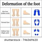illustration of the deformation ... | Shutterstock .eps vector #746369620