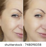 face wrinkles before and after | Shutterstock . vector #748098358