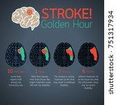 stroke golden hour infographic... | Shutterstock .eps vector #751317934