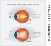 cataracts vision disorder and... | Shutterstock .eps vector #753374593