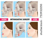 orthognathic surgery vector... | Shutterstock .eps vector #753932050