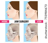 jaw surgery vector illustration  | Shutterstock .eps vector #753984673