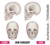 jaw surgery vector illustration  | Shutterstock .eps vector #754038688