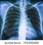 film chest x ray  show normal...   Shutterstock . vector #754500400