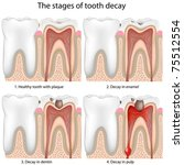 tooth decay | Shutterstock .eps vector #75512554