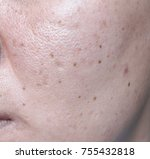 woman 's problematic skin  ... | Shutterstock . vector #755432818