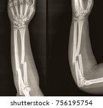 x ray of broken both bone left... | Shutterstock . vector #756195754