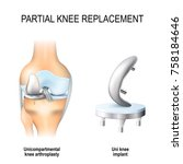 partial knee replacement.... | Shutterstock .eps vector #758184646