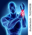 wrist painful   skeleton x ray  ... | Shutterstock . vector #763244038