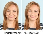 mature woman before and after... | Shutterstock . vector #763459360