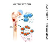 multiple myeloma is a cancer of ... | Shutterstock .eps vector #763884190