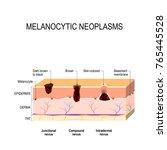 melanocytic nevus. junctional ... | Shutterstock .eps vector #765445528