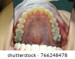 Small photo of tooth filling with amalgam