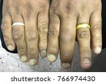 nail psoriasis in case hiv co... | Shutterstock . vector #766974430