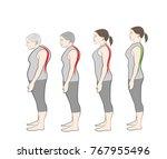 development of a stooped stance ... | Shutterstock .eps vector #767955496