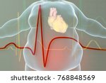 heart disease in a person with... | Shutterstock . vector #768848569