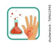 chemical burn of third degree....   Shutterstock .eps vector #769611943