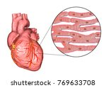 human heart and close up view...   Shutterstock . vector #769633708