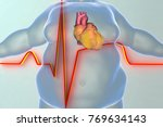 heart disease in a person with... | Shutterstock . vector #769634143