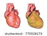 healthy and obese heart with...   Shutterstock . vector #770528173